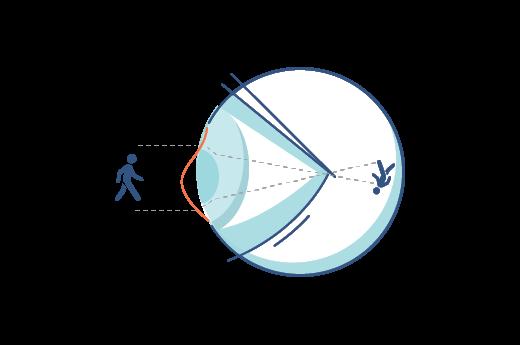 Ilustración de una cornea irregular.